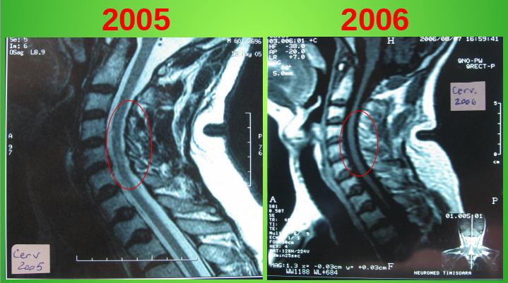Imagini RMN sugestive pentru evidenta faptului ca SM este curabila