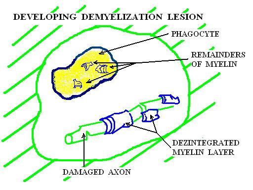 Placa de demielinizare in formare