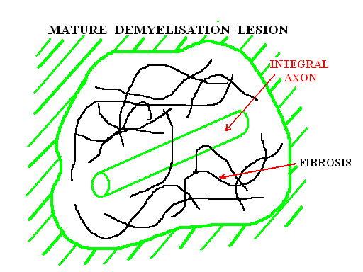 Placa de demielinizare matura