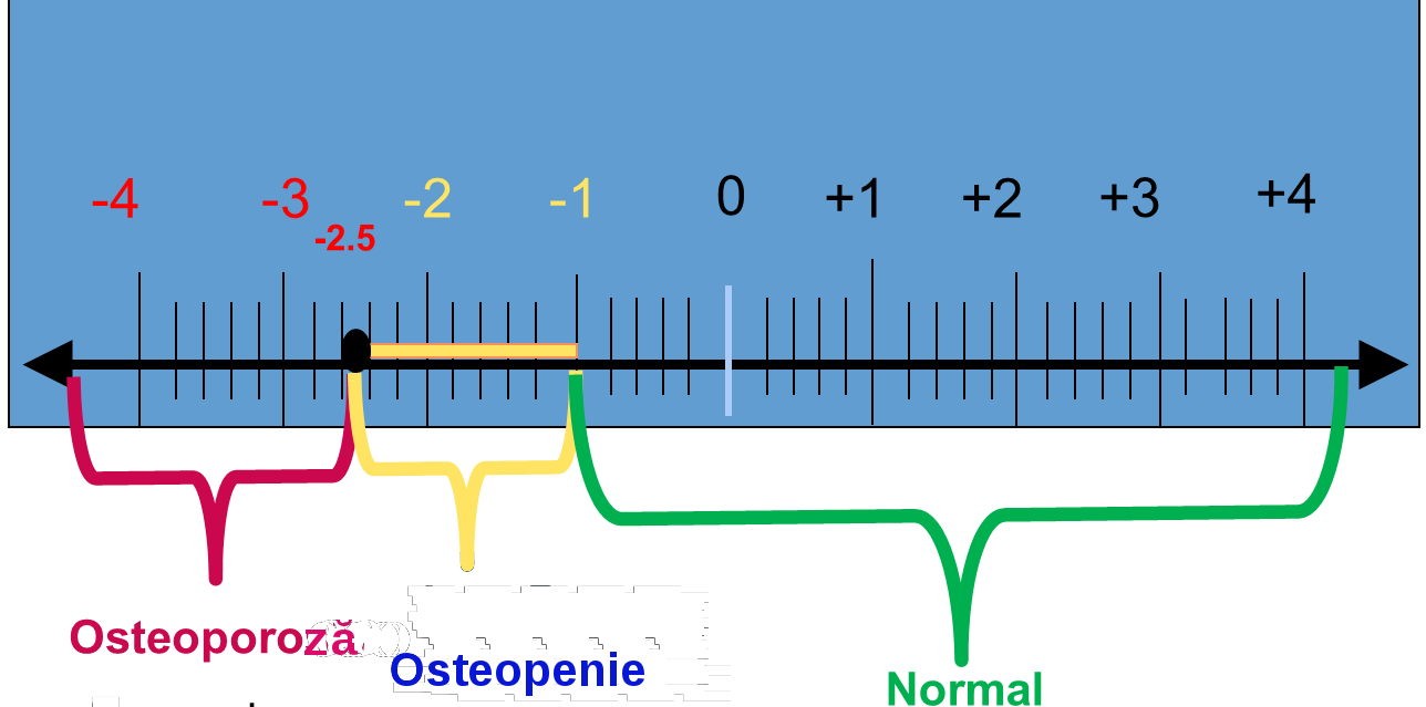 Osteodensimetrie